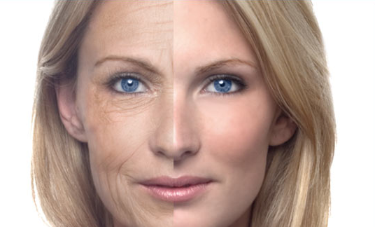 remove wrinkles naturally