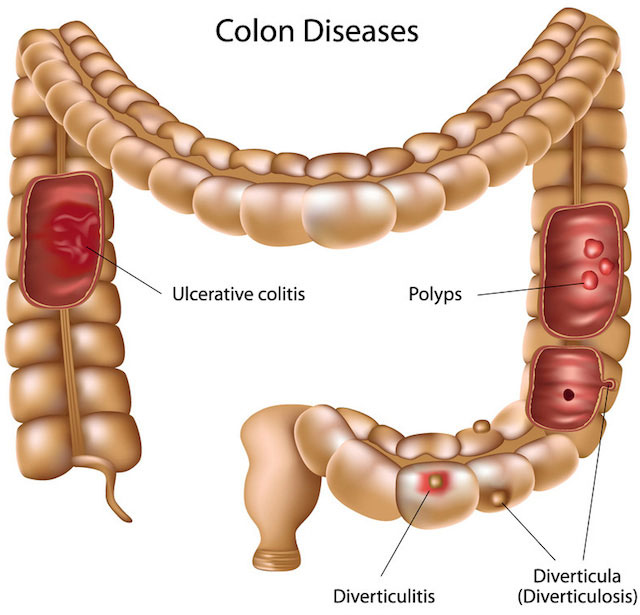 Cleanse Colon regularly