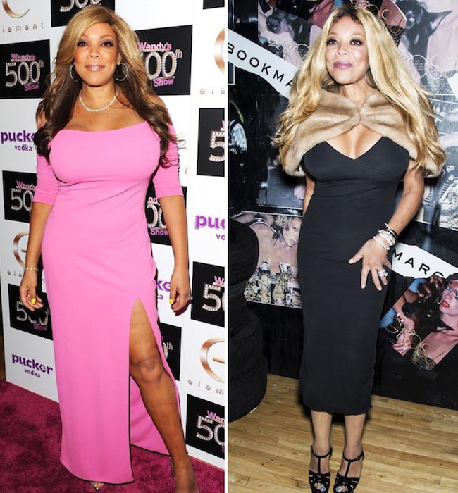 Wendy Williams 'before' and 'after'