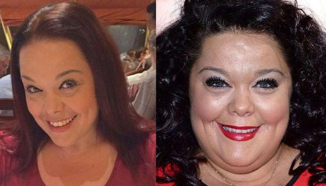 Lisa Riley face changes