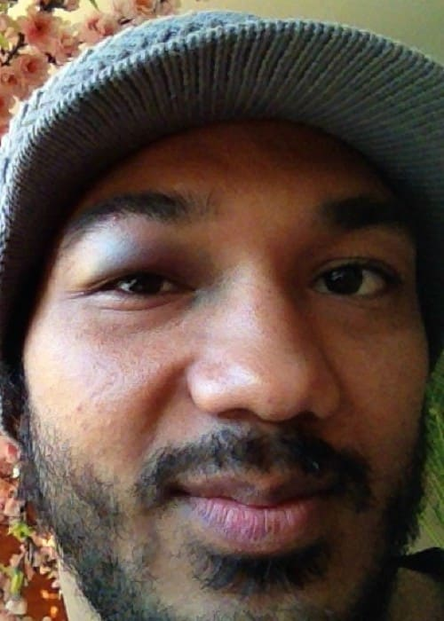Benson Henderson showing his injury in a selfie in October 2013