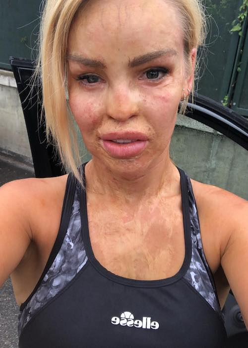 Katie Piper showing her acid affected face after a morning running session in August 2018